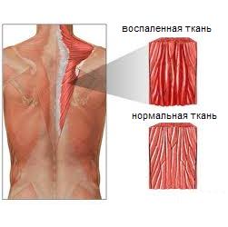 Миозит мышц спины: причины, симптомы, лечение