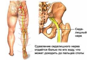 Защемление нерва в пояснице: симптомы, лечение (фото, видео)