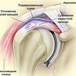 Ноющая боль в области плечевого сустава дисплазия тазобедренного сустава тип 2a у новорожденных