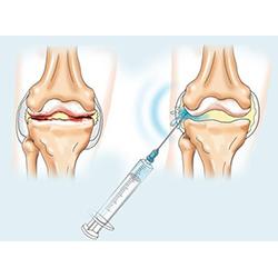 Внутрисуставные инъекции слева 7 шагов к здоровью мышц костей и суставов скачать